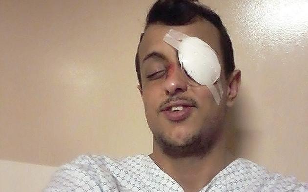 Flüchtling ins Gesicht geschossen