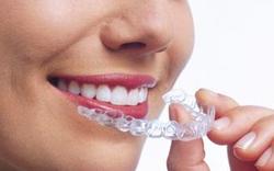 Zahnspange wird Style-Teil