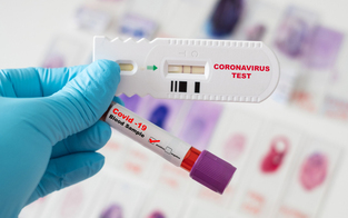 Europol warnt vor gefälschten Corona-Testergebnissen