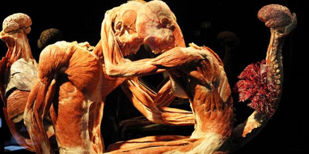 Naturhistorischen Museum zeigt Körperwelten