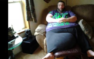 Mann mit 35-Kilo-Hoden will neues Leben