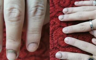17-Jährige mit Schimmel-Fingern nach 7 Stunden in Latexhandschuhen