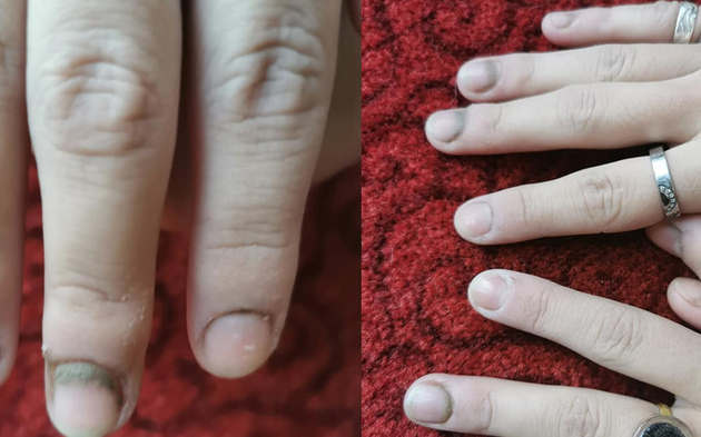 Schimmel Finger Kärnten