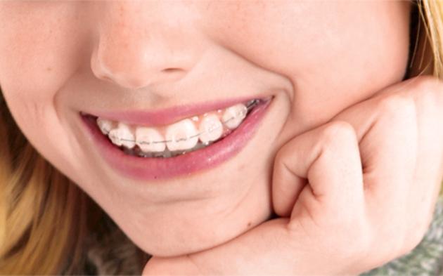 Zahnspange.jpg