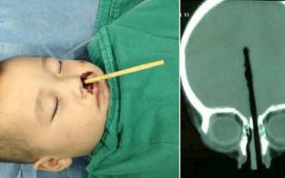 Kind rammt sich Stäbchen ins Hirn
